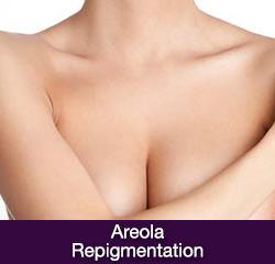 Areola Repigmentation