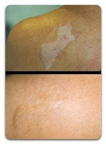 scar repigmentation