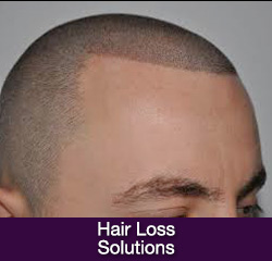 Hairloss Solutions