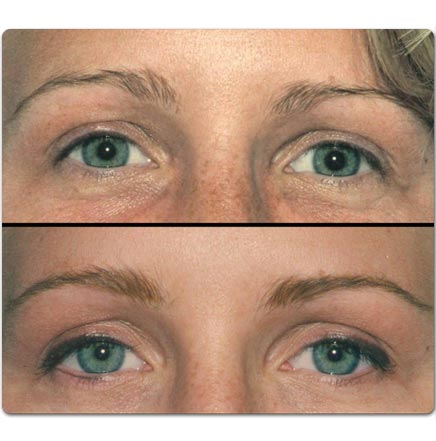 eyebrows before and after