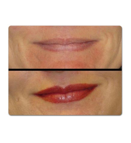 lip before and after