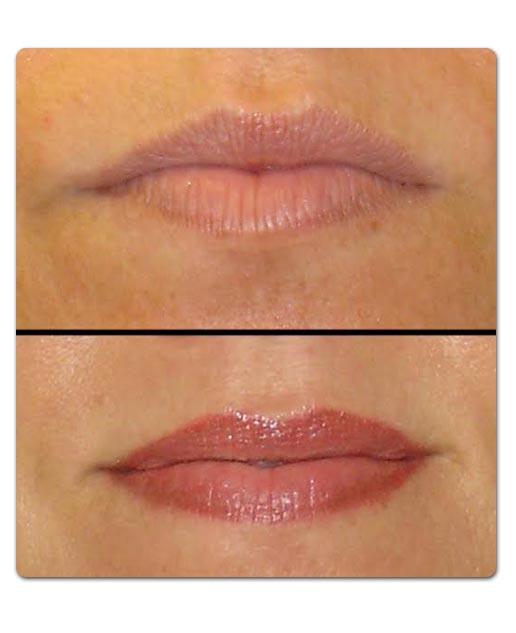lips before and after